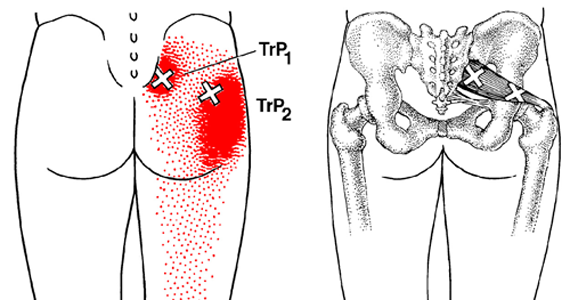 Trigger Point Piriformis